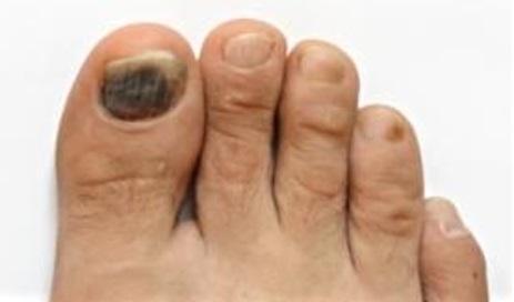 Black Toe Nails – KundaliniAwakenings org